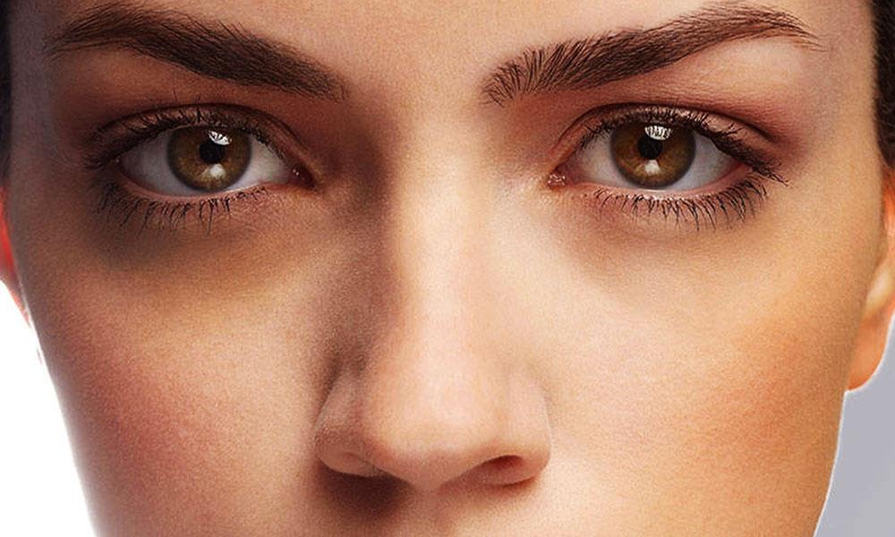 درمان سیاهی دور چشم – کلینیک درمان سلولیت در اصفهان